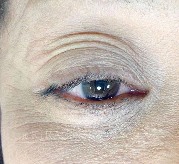 眼瞼下垂対応・特殊まつ毛パーマ施術前