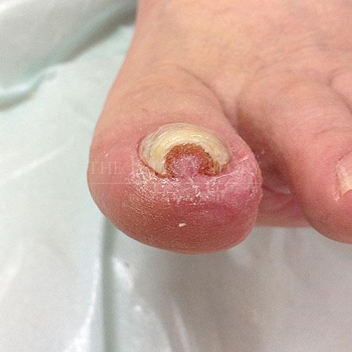 巻き爪矯正施術後